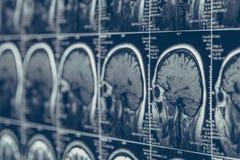 Ανίχνευση εγκεφάλου MRI ή των ακτίνων X δοκιμή τομογραφίας κρανίων νευρολογίας ανθρώπινη επικεφαλής Στοκ φωτογραφία με δικαίωμα ελεύθερης χρήσης