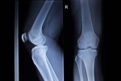 Ανίχνευση ορθοπεδικής ακτίνας X του επίπονου τραυματισμού ποδιών μηνίσκων γονάτων στοκ φωτογραφία με δικαίωμα ελεύθερης χρήσης