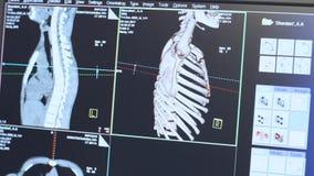 Ανίχνευση τομογραφίας του ανθρώπινου κλουβιού πλευρών στο όργανο ελέγχου Ακτινογραφία υψηλής τεχνολογίας απόθεμα βίντεο