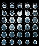 ανίχνευση CT εγκεφάλου Στοκ εικόνες με δικαίωμα ελεύθερης χρήσης