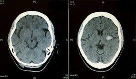 Ανίχνευση CT εγκεφάλου που παρουσιάζει κτύπημα αιμορραγίας Στοκ Εικόνες