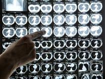 ανίχνευση CT κινηματογραφή&si Στοκ εικόνα με δικαίωμα ελεύθερης χρήσης