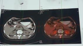 Ανίχνευση Pet-CT στομαχιών & παγκρεάτων χρώματος μελέτης γιατρών, ανθρώπινη ακτινογραφία οργάνων απόθεμα βίντεο