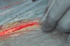 Ανατομή του δέρματος κατά τη διάρκεια της χειρουργικής επέμβασης στοκ εικόνα με δικαίωμα ελεύθερης χρήσης