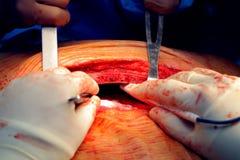 Ανατομή sternum κατά τη διάρκεια της χειρουργικής επέμβασης στοκ φωτογραφίες με δικαίωμα ελεύθερης χρήσης