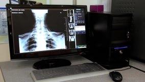 Ανατομία ακτίνας X απόθεμα βίντεο