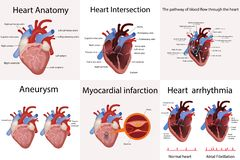 Ανατομία καρδιών και τύποι διανυσματικών απεικονίσεων καρδιακών παθήσεων διανυσματική απεικόνιση