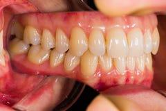 ανατομία οδοντική Στοκ Εικόνα