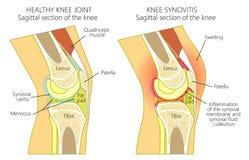 Ανατομία του knee_synovitis Στοκ Εικόνα