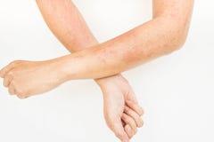 Αναφυλαξίες δερμάτων, δερματίτιδα επαφών αλλεργιών, αλλεργική στις χημικές ουσίες Στοκ φωτογραφίες με δικαίωμα ελεύθερης χρήσης