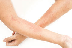Αναφυλαξίες δερμάτων, δερματίτιδα επαφών αλλεργιών, αλλεργική στις χημικές ουσίες Στοκ εικόνες με δικαίωμα ελεύθερης χρήσης