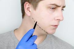 Ανελκυστήρας πηγουνιών - mentoplasty Ένα άτομο στην υποδοχή στον πλαστικό χειρούργο Προετοιμασία για τη χειρουργική επέμβαση στοκ φωτογραφία με δικαίωμα ελεύθερης χρήσης