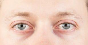 Ανθρώπινα κουρασμένα μάτια Στοκ φωτογραφία με δικαίωμα ελεύθερης χρήσης