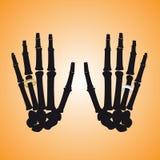Ανθρώπινα κόκκαλα χεριών με τα δαχτυλίδια Στοκ Εικόνες