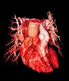 Ανθρώπινα σκάφη καρδιών και πνευμόνων, εικόνα CT, τρισδιάστατη Στοκ εικόνες με δικαίωμα ελεύθερης χρήσης