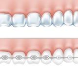 Ανθρώπινα δόντια με τα στηρίγματα καθορισμένα διανυσματική απεικόνιση