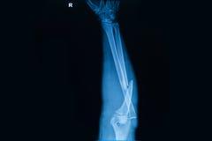 ανθρώπινες ακτίνες X που παρουσιάζουν σπάσιμο του κόκκαλου ακτίνας Στοκ Φωτογραφίες