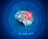 Ανθρώπινες ζημία εγκεφάλου και επεξεργασία ελεύθερη απεικόνιση δικαιώματος