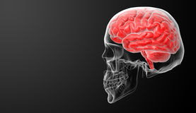 Ανθρώπινη ακτίνα X εγκεφάλου Στοκ φωτογραφίες με δικαίωμα ελεύθερης χρήσης