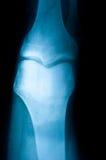 ανθρώπινη ανίχνευση ποδιών Στοκ Εικόνα