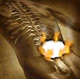 Ανθρώπινη επίπονη πλάτη Στοκ φωτογραφία με δικαίωμα ελεύθερης χρήσης