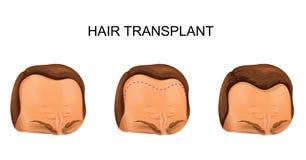 Ανθρώπινη μεταμόσχευση τρίχας απεικόνιση αποθεμάτων