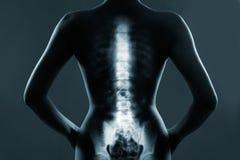 Ανθρώπινη σπονδυλική στήλη στην ακτίνα X Στοκ εικόνες με δικαίωμα ελεύθερης χρήσης