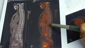 Ανθρώπινη σπονδυλική Pet-CT ανίχνευση χρώματος μελέτης γιατρών, ακτίνα X, μετάσταση καρκίνου απόθεμα βίντεο