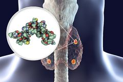 Ανθρώπινη parathyroid ορμόνη απεικόνιση αποθεμάτων