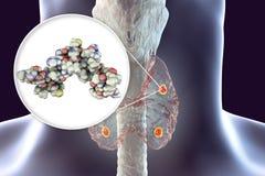 Ανθρώπινη parathyroid ορμόνη διανυσματική απεικόνιση