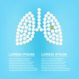Ανθρώπινοι πνεύμονες με τα χάπια σε μια ρεαλιστική διανυσματική απεικόνιση υποβάθρου η έννοια που δημιουργήθηκε απομόνωσε το ιατρ διανυσματική απεικόνιση
