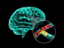 Ανθρώπινος εγκέφαλος με την εγκεφαλική σκλήρυνση Ανθρώπινη τρισδιάστατη απεικόνιση ανατομίας εγκεφάλου διανυσματική απεικόνιση