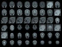 Ανθρώπινος εγκέφαλος Στοκ Φωτογραφία