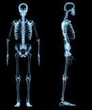 Ανθρώπινος σκελετός κάτω από τις ακτίνες X Στοκ εικόνα με δικαίωμα ελεύθερης χρήσης