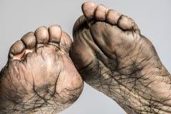 Ανθρώπινο δέρμα ποδιών Στοκ φωτογραφία με δικαίωμα ελεύθερης χρήσης