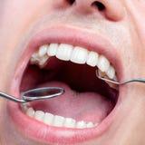 Ανθρώπινο αρσενικό στόμα που παρουσιάζουν δόντια με το οδοντικό τσεκούρι και στόμα mir Στοκ Εικόνες