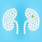 Ανθρώπινο νεφρό με τα χάπια σε μια ρεαλιστική διανυσματική απεικόνιση υποβάθρου διανυσματική απεικόνιση