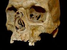 ανθρώπινο scull Στοκ εικόνα με δικαίωμα ελεύθερης χρήσης