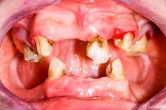 Ανθυγειινό στόμα Στοκ εικόνα με δικαίωμα ελεύθερης χρήσης