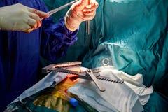 Ανοικτή χειρουργική επέμβαση παράκαμψης καρδιών καρδιακή στο δωμάτιο λειτουργίας Στοκ εικόνες με δικαίωμα ελεύθερης χρήσης
