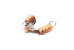 Ανοξείδωτος κλέψτε την οδοντοστοιχία Στοκ φωτογραφία με δικαίωμα ελεύθερης χρήσης