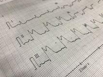 Ανύψωση του ST σε χαρτί ECG Στοκ Φωτογραφίες