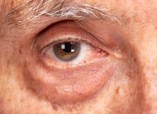 Ανώτερα μάτια ατόμων στοκ φωτογραφίες με δικαίωμα ελεύθερης χρήσης