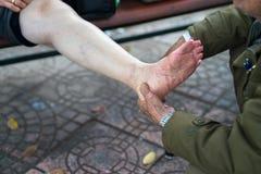Ανώτερα χέρια ατόμων που κάνουν το μασάζ στα πόδια πόνου ηλικιωμένων γυναικών στην οδό Στοκ Εικόνα