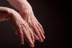 Ανώτερα χέρια. Να πάσσει από τον πόνο και το ρευματισμό στοκ εικόνα με δικαίωμα ελεύθερης χρήσης
