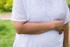 Ανώτερη ασιατική γυναίκα με τις φακίδες ή ρυτίδα στο βραχίονα, προβλήματα ασθενειών δερμάτων στοκ εικόνες