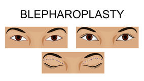 Ανώτερο βλέφαρο blepharoplasty ελεύθερη απεικόνιση δικαιώματος