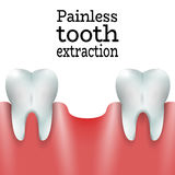 Ανώδυνη εξαγωγή δοντιών Στοκ φωτογραφία με δικαίωμα ελεύθερης χρήσης