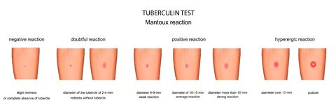Αξιολόγηση της απάντησης δοκιμής Mantoux ελεύθερη απεικόνιση δικαιώματος