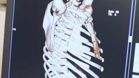 Απεικόνιση μαγνητικής αντήχησης του ανθρώπινου σκελετού στην επίδειξη απόθεμα βίντεο